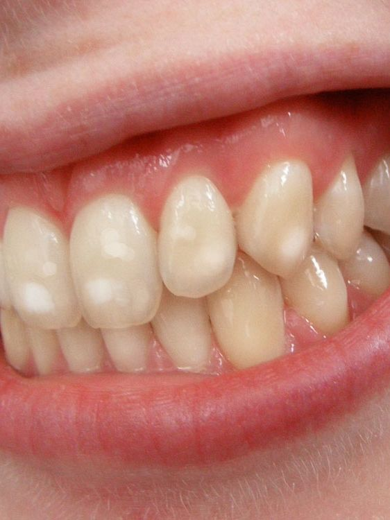 What Are The White Spots On My Teeth? A Kelowna Dentist Explains